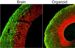 Vergleich zwischen einem Organoid (rechts) und einem Mäusehirn in der frühen Entwicklung. Foto: Marko Repic und Madeline A. Lancaster